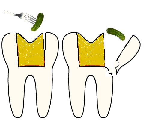 Когда зуб чернеет изнутри